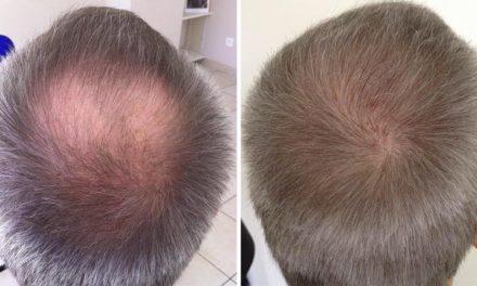 Quels sont les risques de la greffe de cheveux?