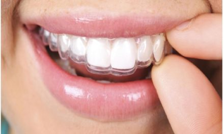 Orthodontie invisible : quel traitement choisir entre l'orthodontie invisalign et linguale ?