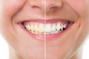 5 conseils pour retrouver le sourire